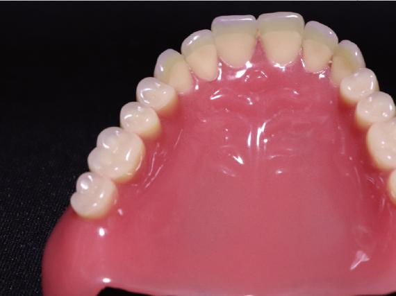 有床義歯 「有床義歯」には、全ての歯を失った人が 装着する総義歯と部分的に歯を失った人が装着する部分床義歯があります。 義歯を入れて噛み合わせや歯並びを整えることで、 食事の楽しみや発音など健康を回復できます。